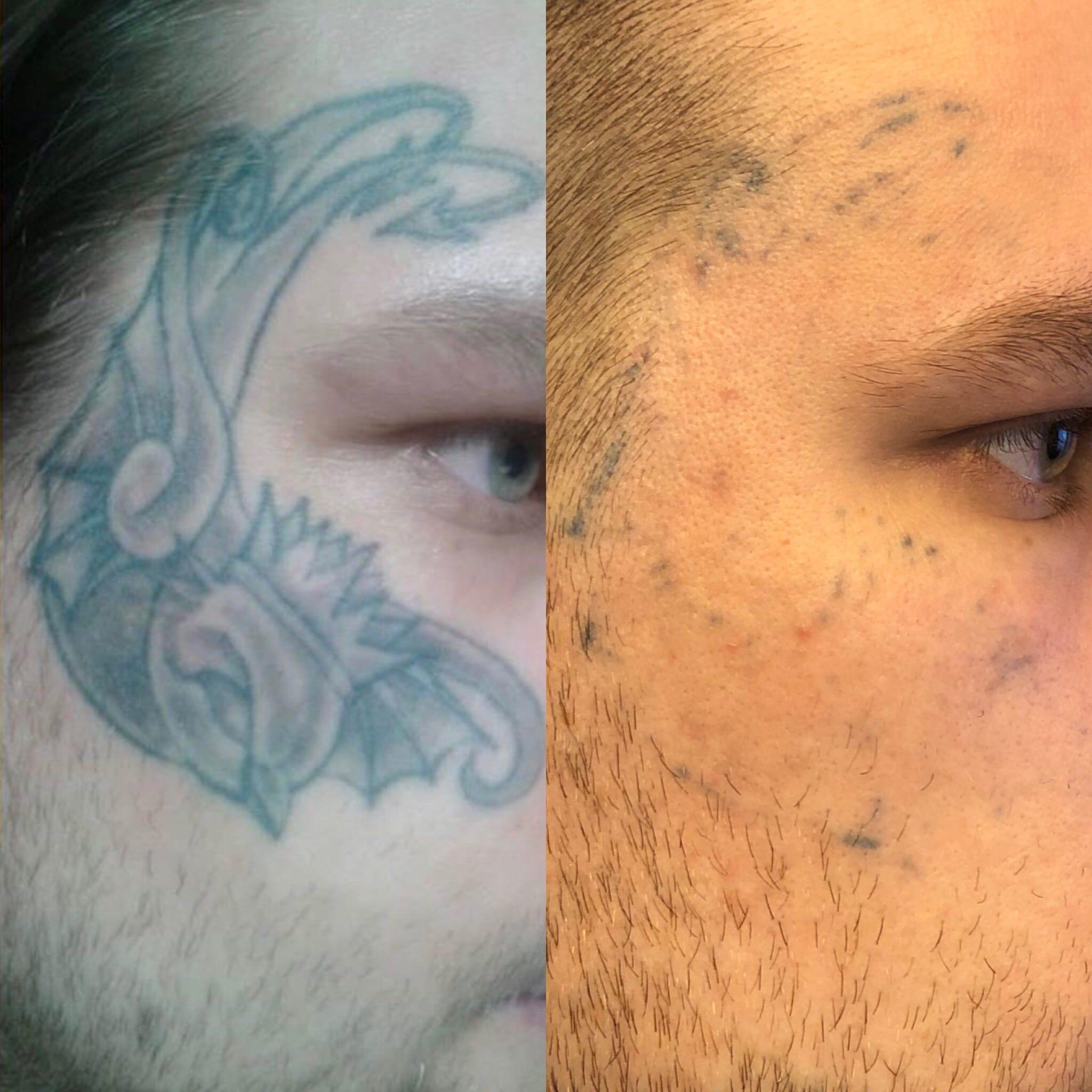 operera bort tatuering